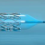 Balloon Dilation Catheters